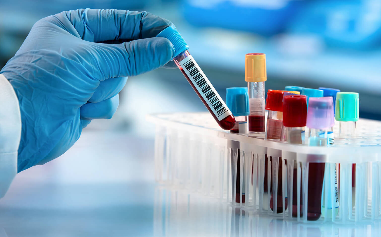 Professional Blood Sample Collection Services in Gurugram